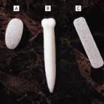 Medpor Nasal Implants Dr Barry Eppley Indianapolis